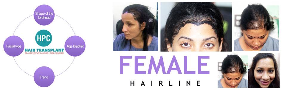 hairline desing in mumbai